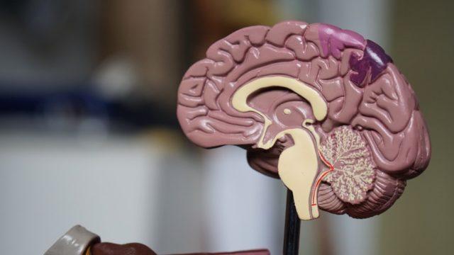 脳の模型図